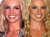 Britney Spears Chirurgia