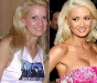 Holly Madison Chirurgia